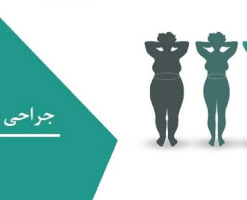 هزینه جراحی چاقی