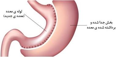 قبل از انجام دادن جراحی اسلیو معده باید چه مسائلی را رعایت کرد؟