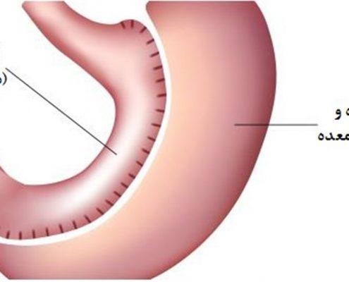 جلسات مشاوه ای قبل و بعد از عمل جراحی لاغری چه فوایدی دارد؟
