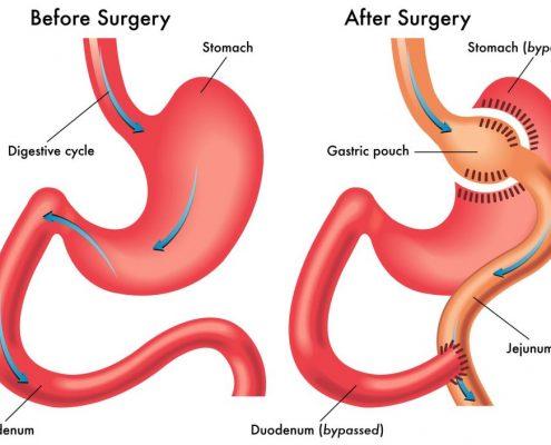 تاریخچه و نحوه انجام جراحی بای پس معده را شرح دهید؟