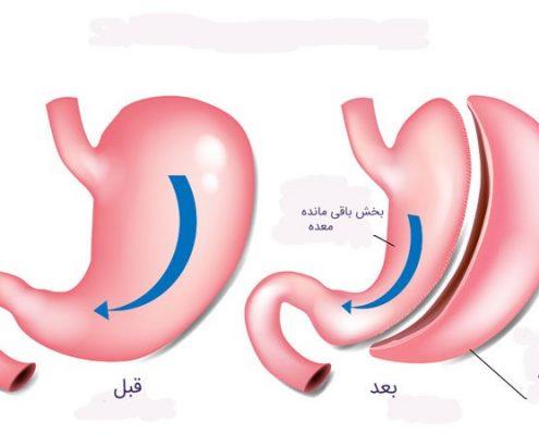 جراحی اسلیو معده چگونه عملی است؟