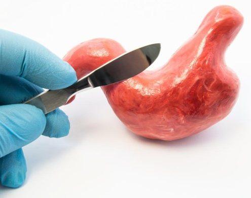 عملیاتی که بیمار قبل از انجام عمل بای پس معده طبق توصیه پزشک جراح باید انجام دهد چه می باشد؟