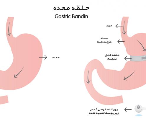 عمل جراحی لاغری حلقه ی معده را شرح دهید؟