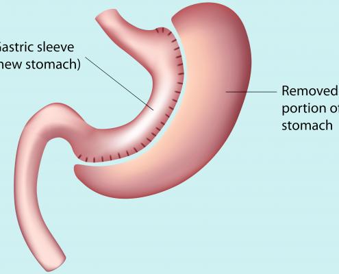 جراحی چاقی اسلیو مناسب چه کسانی است؟