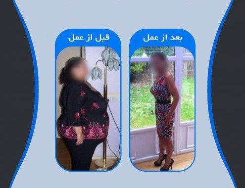 میزان کاهش وزن در عمل جراحی مینی بای پس معده چقدر است؟