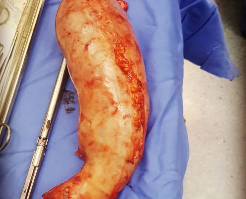 جراحی اسلیو معده چگونه انجام می شود؟