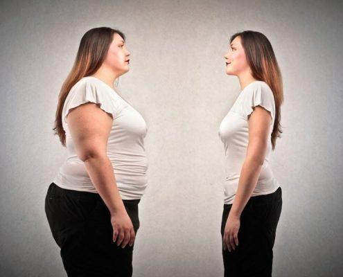 طبق تحقیقات انجام شده بین عمل لاغری بای پس کلاسیک معده و عمل اسلیو معده کدام یک بهتر است؟