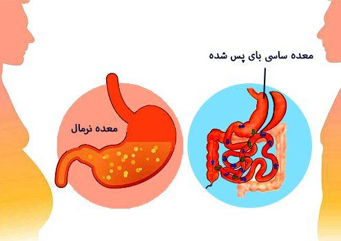 6-عمل جراحی بای پس روده ( جا به جا شدن دوازدهه):