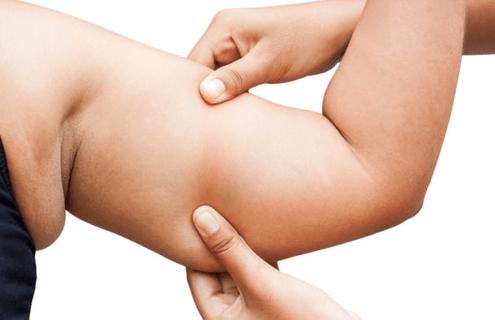 جراحی لاغری لیپوماتیک به چه صورت می باشد؟