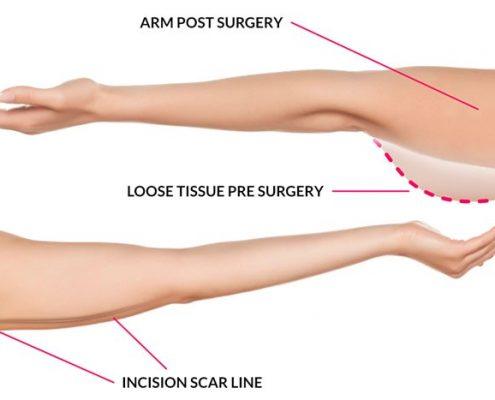 لیفت بازو یا براکیوپلاستی چگونه است؟
