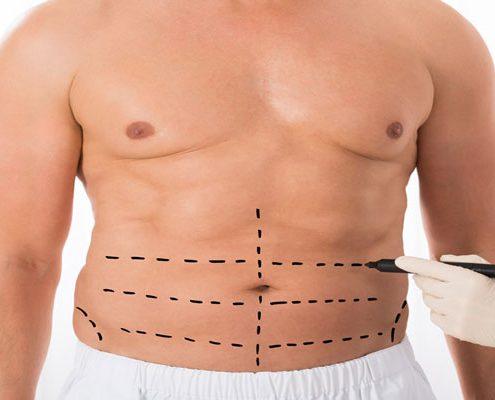 جراحی ابدومینوپلاستی چه روشی است؟