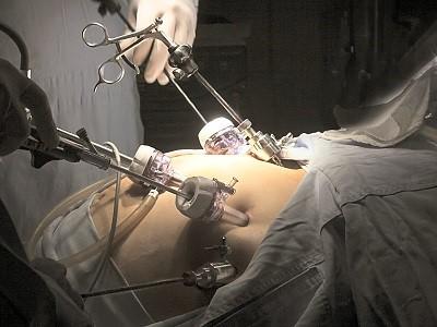 چه اقداماتی قبل از انجام عمل جراحی بای پس معده باید انجام شود؟