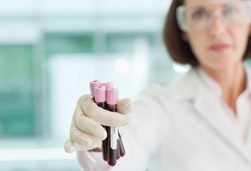 راه های تشخیص برای درمان قطعی دیابت نوع یک چه هستند؟