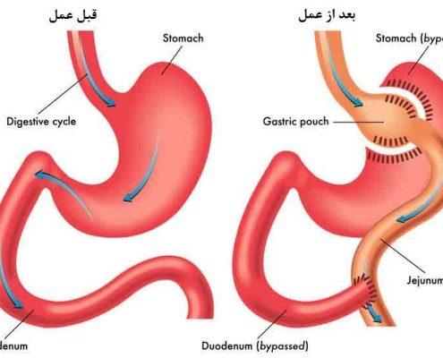 عمل جراحی بای پس معده چگونه انجام می شود؟