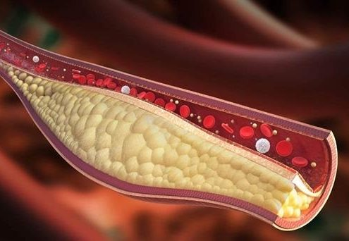 کلسترول خون :