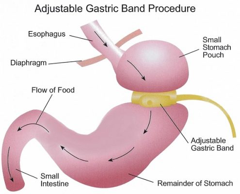 عمل جراحی باندینگ شکمی: