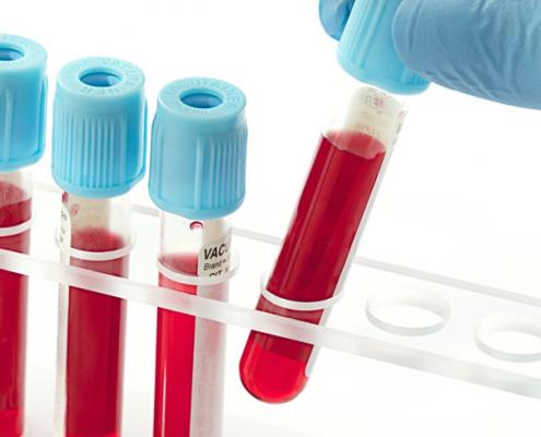 آیا می دانید چرا قبل از انجام عمل جراحی اسلیو معده باید آزمایش خون داد؟