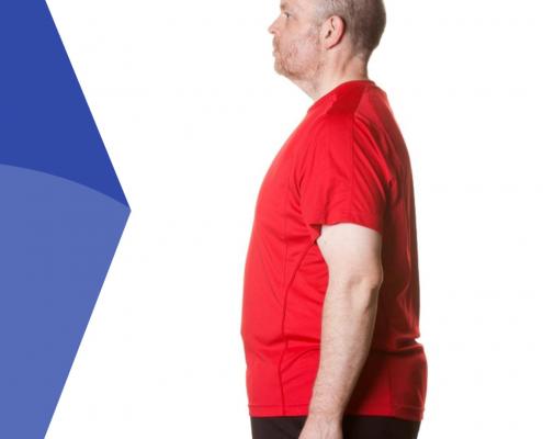 آیا می دانید چاقی موجب چه بیماری هایی می شود؟