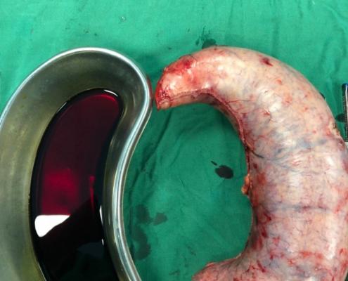 آیا با روش انجام عمل جراحی اسلیو معده آشنایی دارید؟
