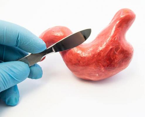 عمل جراحی اسلیو معده با چه روش هایی انجام می شود؟