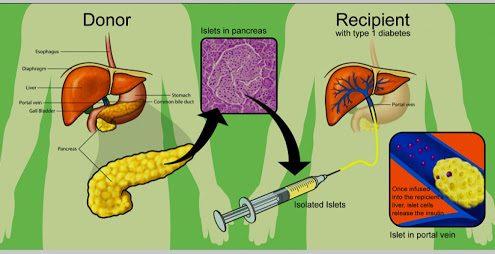 آیا پیوند جزایر لانگرهانس می تواند روشی برای درمان سریع دیابت باشد؟