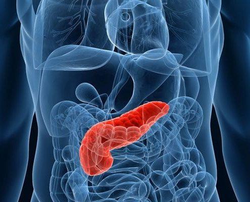 آیا پیوند لوزالمعده می تواند روشی برای درمان سریع دیابت باشد؟