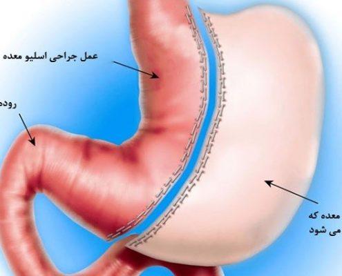 برخی هزینه های تحمیلی پس از جراحی اسلیو معده: