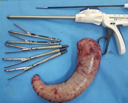 عمل جراحی اسلیو معده چیست؟