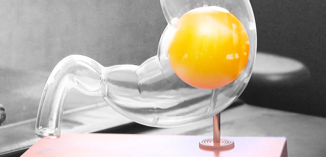 درباره درمان دیابت با استفاده از جراحی بالون معده در ایران چه میدانید؟