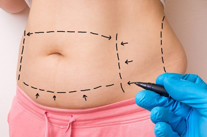 چگونه دیابت نوع ۲ با عمل جراحی لاغری از بین می رود؟