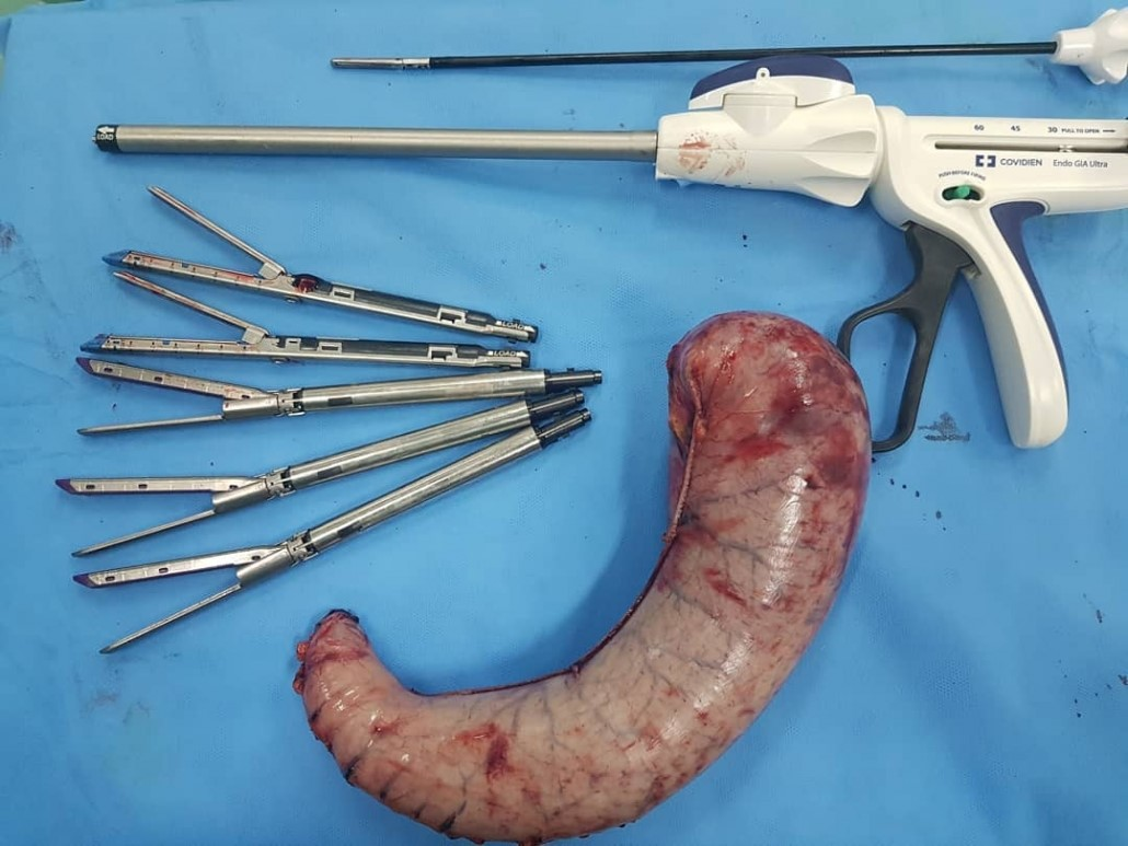 قبل از انجام عمل جراحی اسلیو معده چه نکاتی را باید رعایت کرد؟