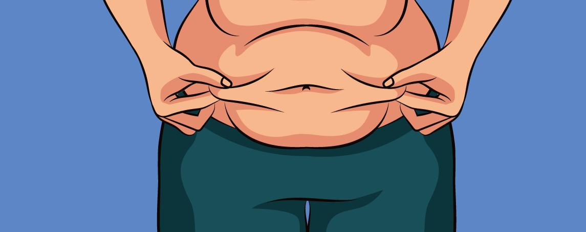 عمومی ترین روش لاغری که جراح لاغری به بیمار خود پیشنهاد می کند چیست؟