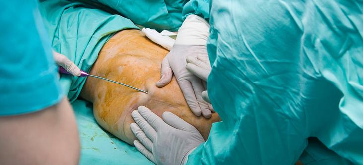 جراح لاغری چه احتمالاتی را پس از روش لاغری به بیمار گوشزد می کند؟