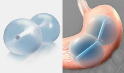 در موارد خاص قرار دادن بالون در معده باعث درمان بعضی از بیماری ها هم می شود