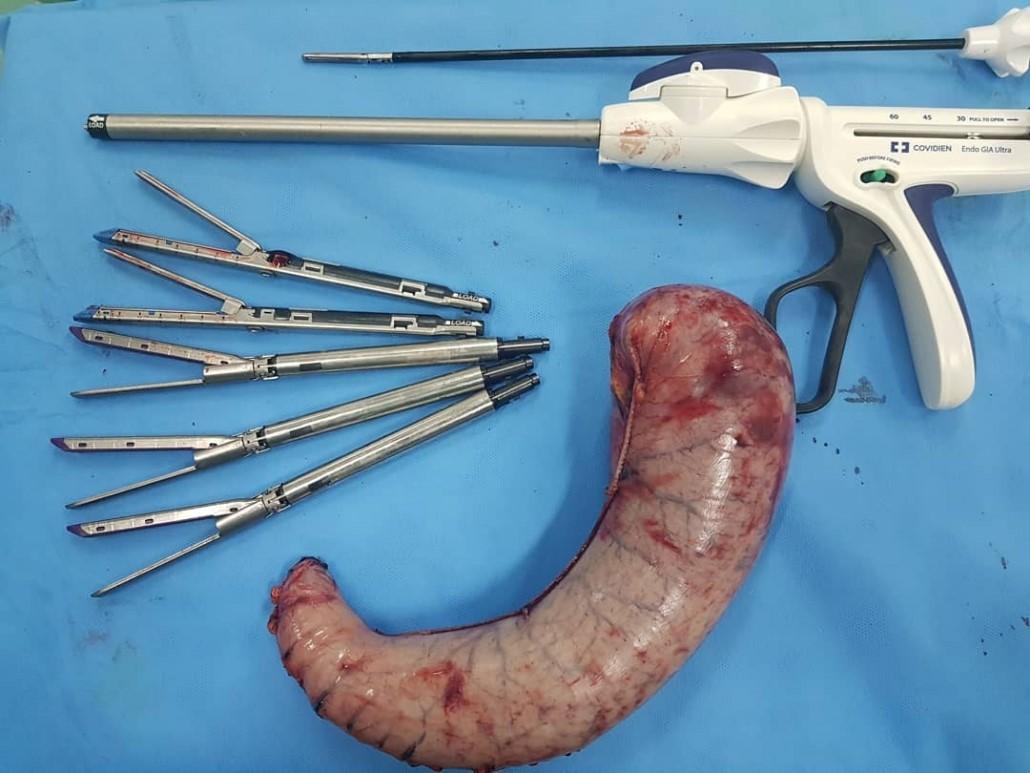 عوامل موثر بر هزینه ی جراحی اسلیو معده