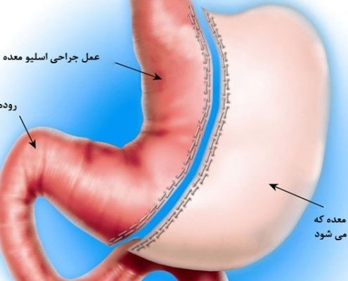 پس از عمل جراحی اسلیو معده افراد چه نتیجهای را مشاهده می کنند و کسانی که این عمل را انجام دادند در رابطه با آثار عمل اسلیو معده چه نظری دارند؟