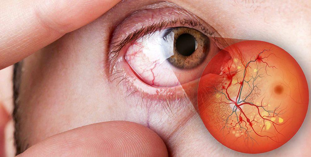 در رابطه با جراحی بینی در افراد دیابتی چه اطلاعاتی دارید؟