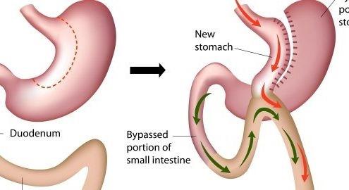 جراحی بای پس معده به چه صورت موجب کاهش وزن می شود؟