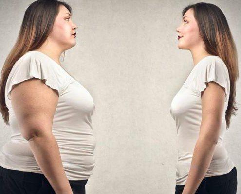 میزان کاهش وزن بعد از جراحی بای پس معده در افراد مختلف با هم فرق دارد
