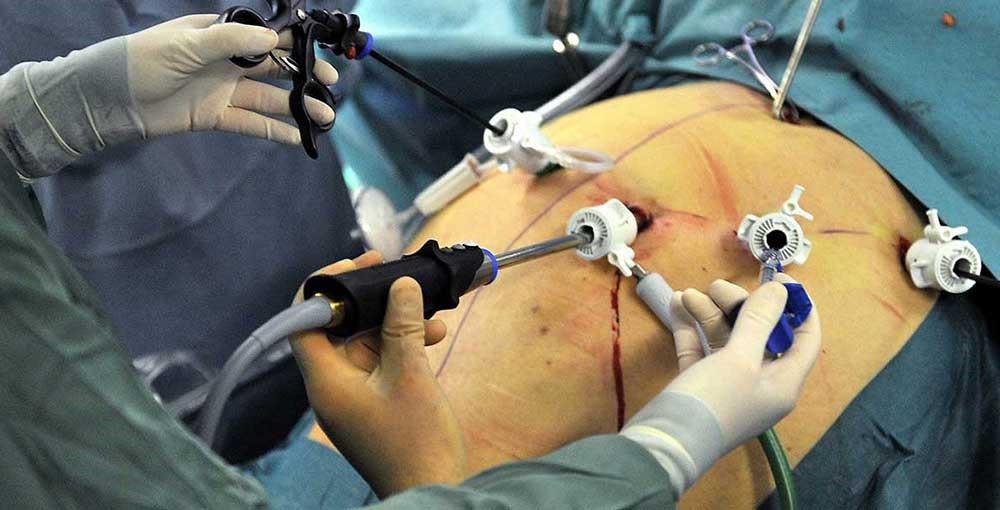 مصرف ویتامین ها و مکمل های روزانه پس از عمل جراحی اسلیو معده چگونه است؟