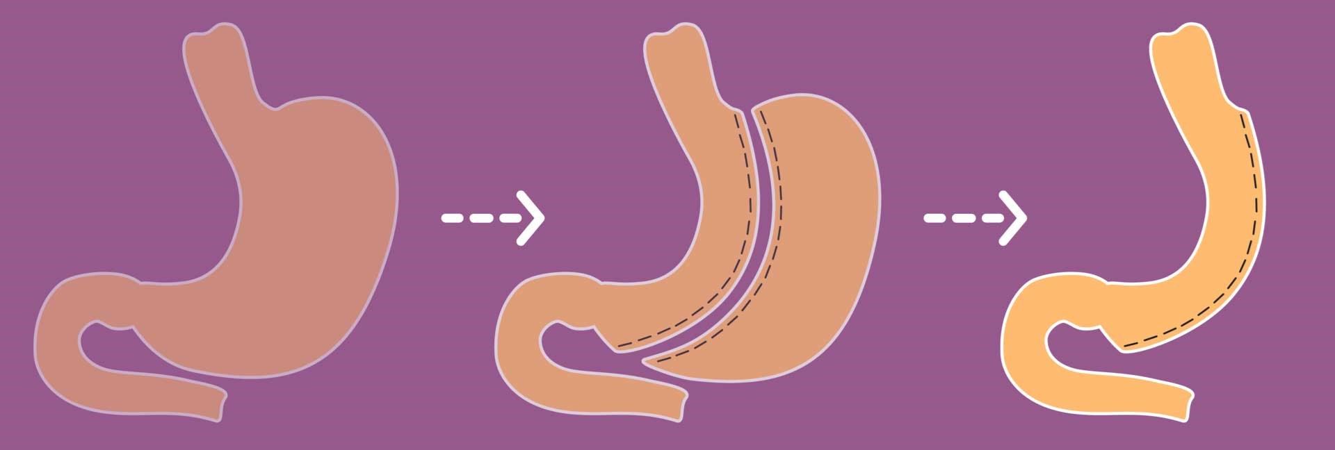 عملکرد جراحی حلقه معده