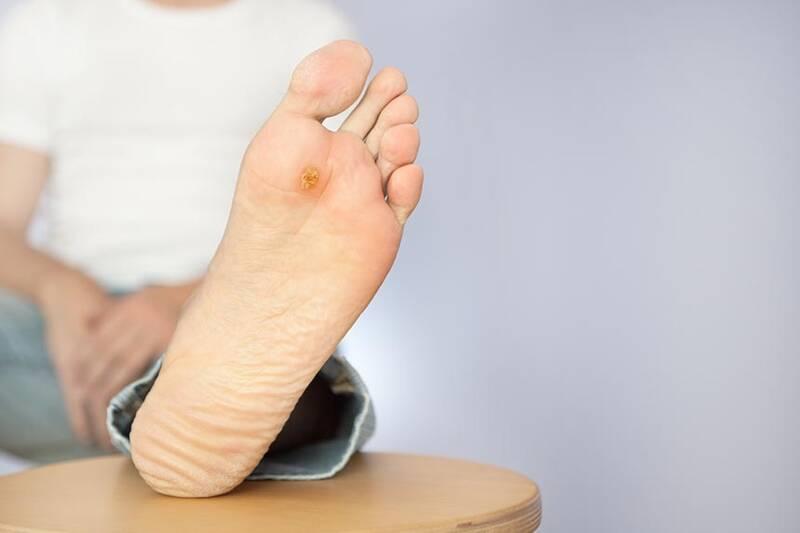 درمان دیابت پا