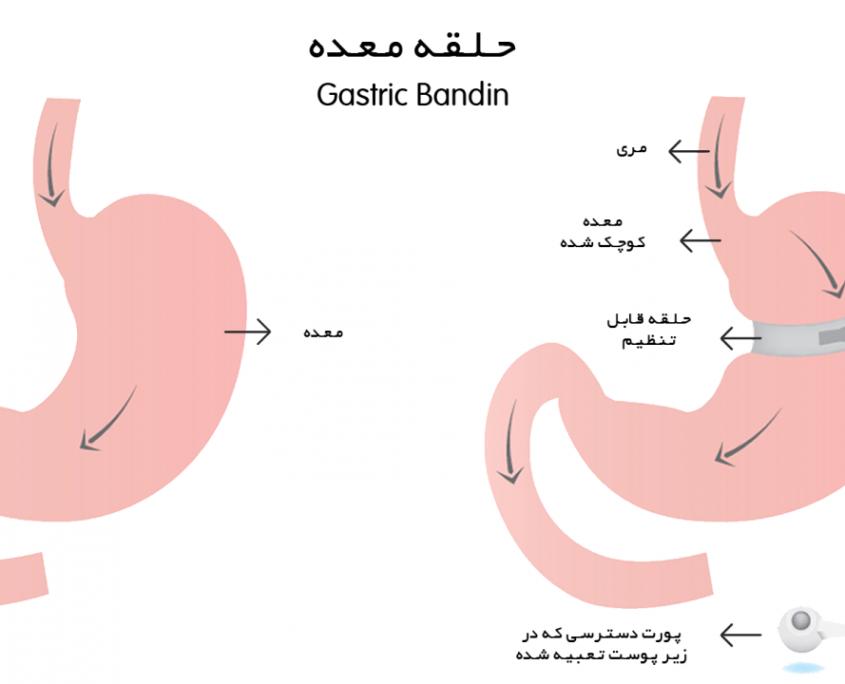 عمل حلقه معده اغلب برای افرادی مناسب می باشد که شرایط زیر را دارند: