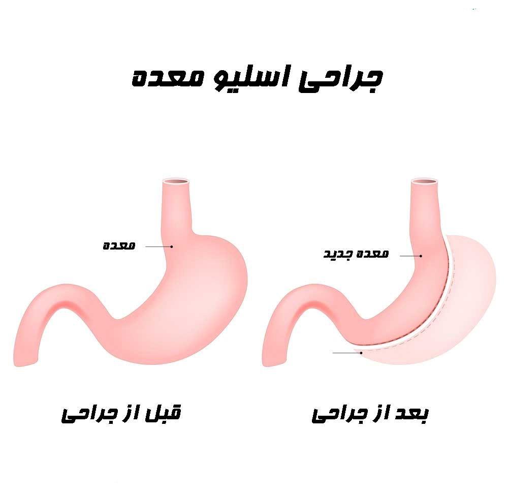 عامل اصلی در اضافه وزن