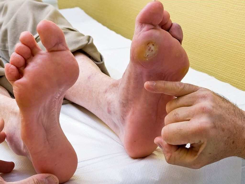 پانکراس در سیستم گوارش بدن نیز موثر است