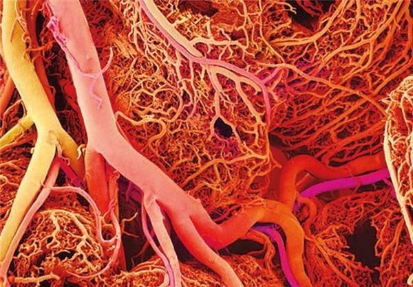عوارض ناشی از فشار خون بالا و دیابت چیست؟