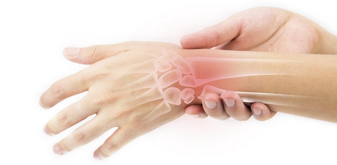 آرتریت روماتوئید یک عارضه ی التهابی و مزمن می باش