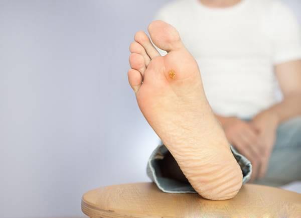 منظور از دیابت قطع پا چیست؟