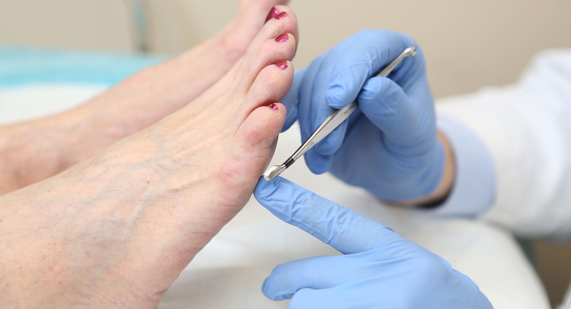 زخم پای دیابتی بهتر است که حتما در یک مرکز تخصصی پیگیری و درمان شود