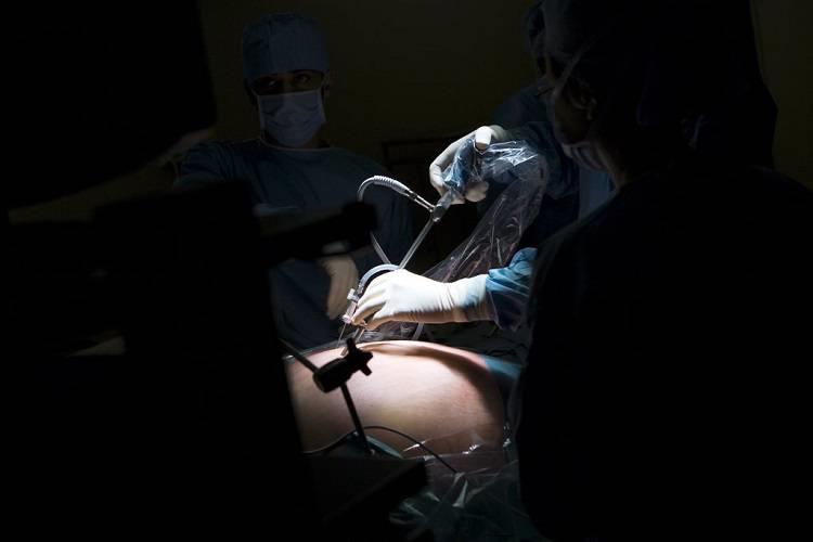 جراحی متابولیک